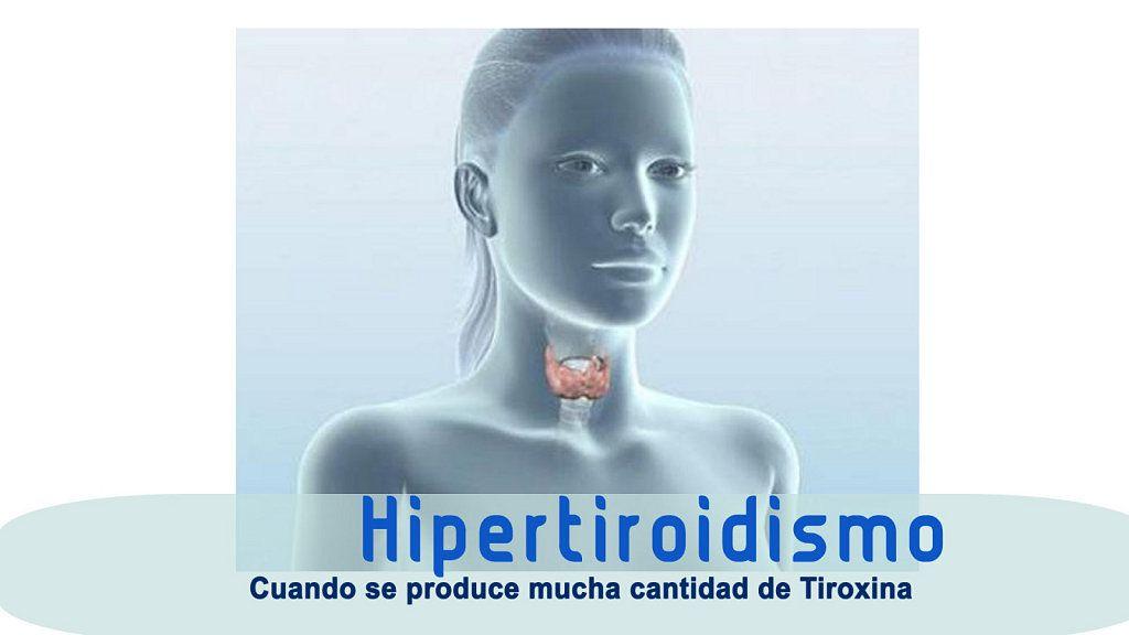 Qué es el hipertiroidismo (con imágenes) - Hipertiroidismo..