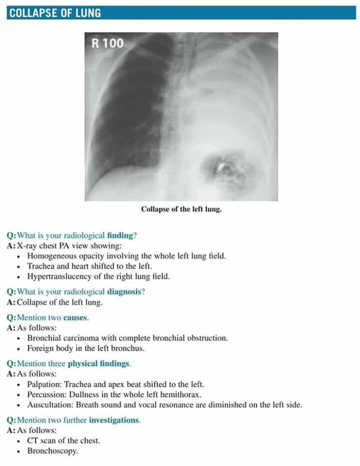 Pin By Sharon On Chest Scheme Human Anatomy And Physiology Radiology Radiography