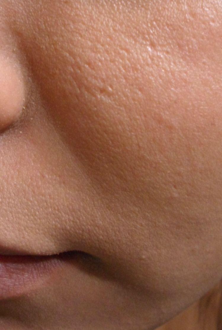 200 Dry Skin Ideas Dry Skin Moisturizer For Dry Skin Skin