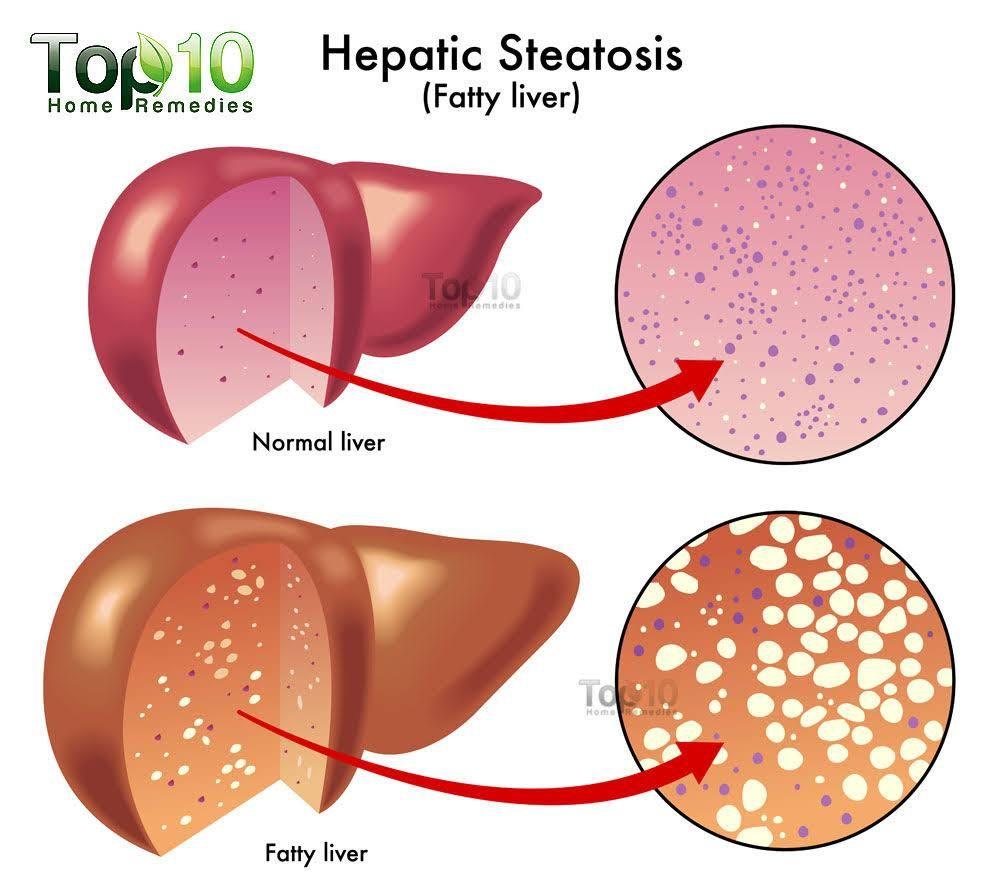 medium resolution of fatty liver diagram