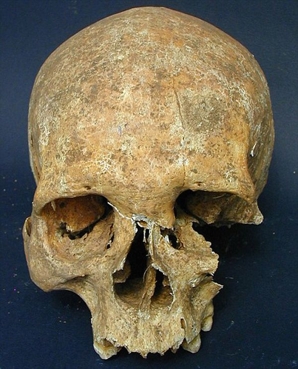 This smashed human skull is said to be the horrifying result of a mace to the face. Anthropologists believe that the man who received this shattering blow did indeed survive as there is evidence of medical intervention in what can only be called medieval brain surgery. -more on the blog -  http://skullappreciationsociety.com/smashed-human-skull/ via @Skull_Society