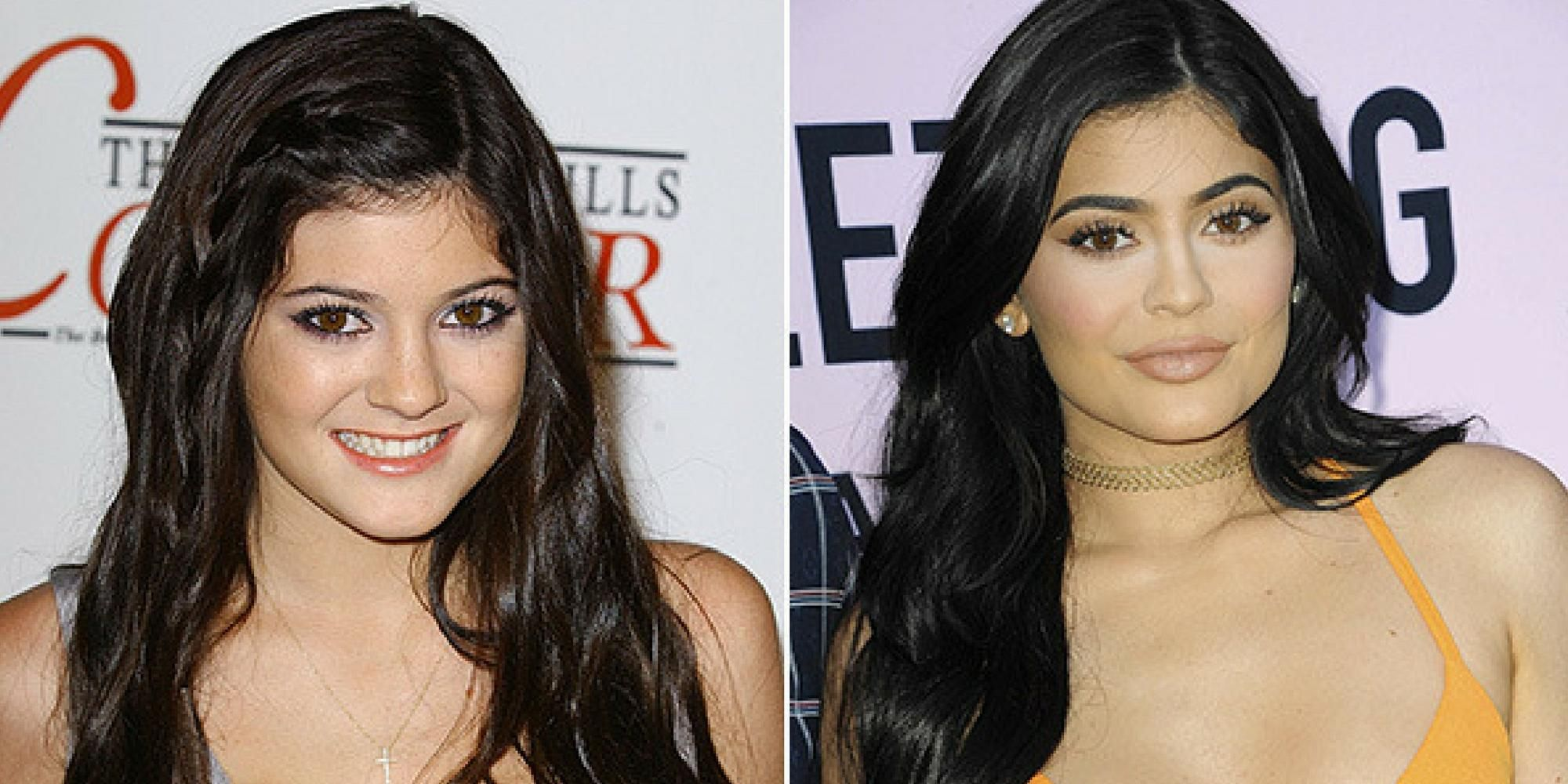 when you should get into plastic surgery? - plastic surgery before