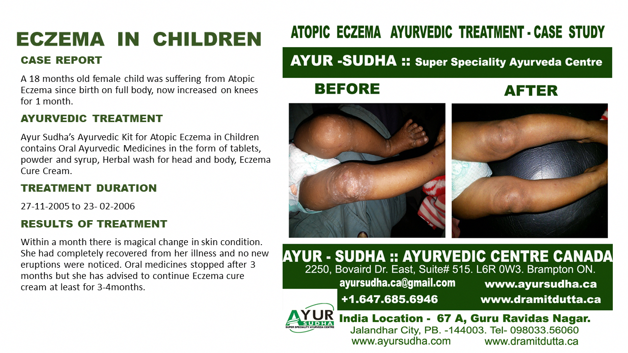 Eczema In Children Atopic Eczema Best Ayurvedic Treatment In