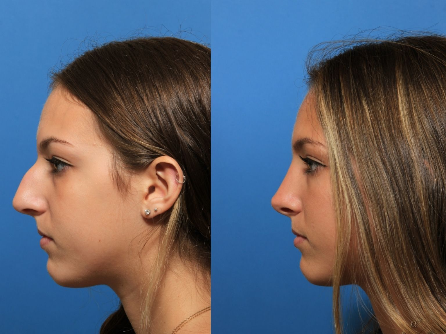 Pin by Dima on Rhinoplasty in 2020 Nonsurgical nose job