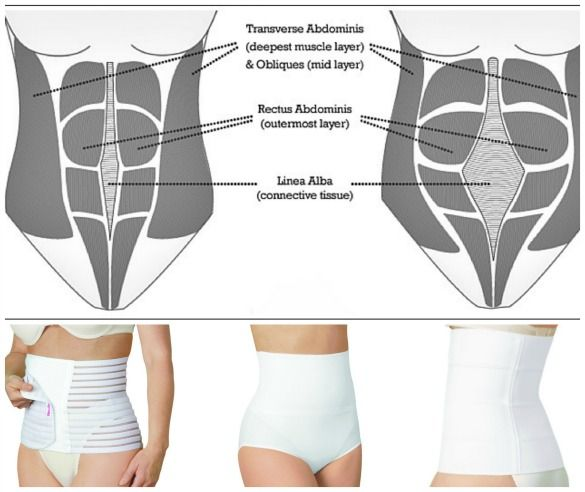 Postpartum Belly Wraps Will They Help Your Recovery