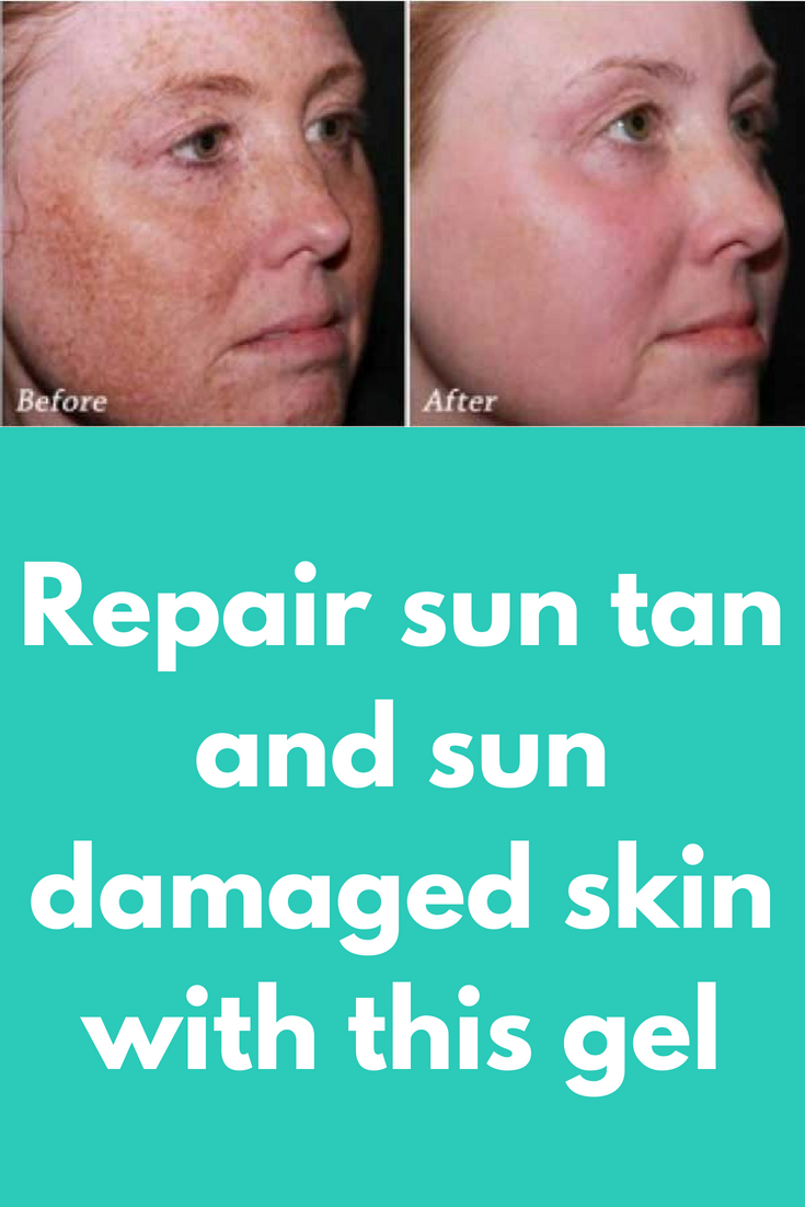 Repair Sun Tan And Sun Damaged Skin With This Gel You Ve Probably Heard About Benefits Of Both Alo Sun Damaged Skin Repair Sun Damaged Skin Damaged Skin Repair