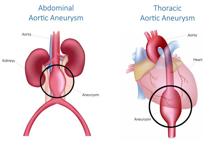 75% of aortic aneurysms are abdominal aortic aneurysms (formed in ...
