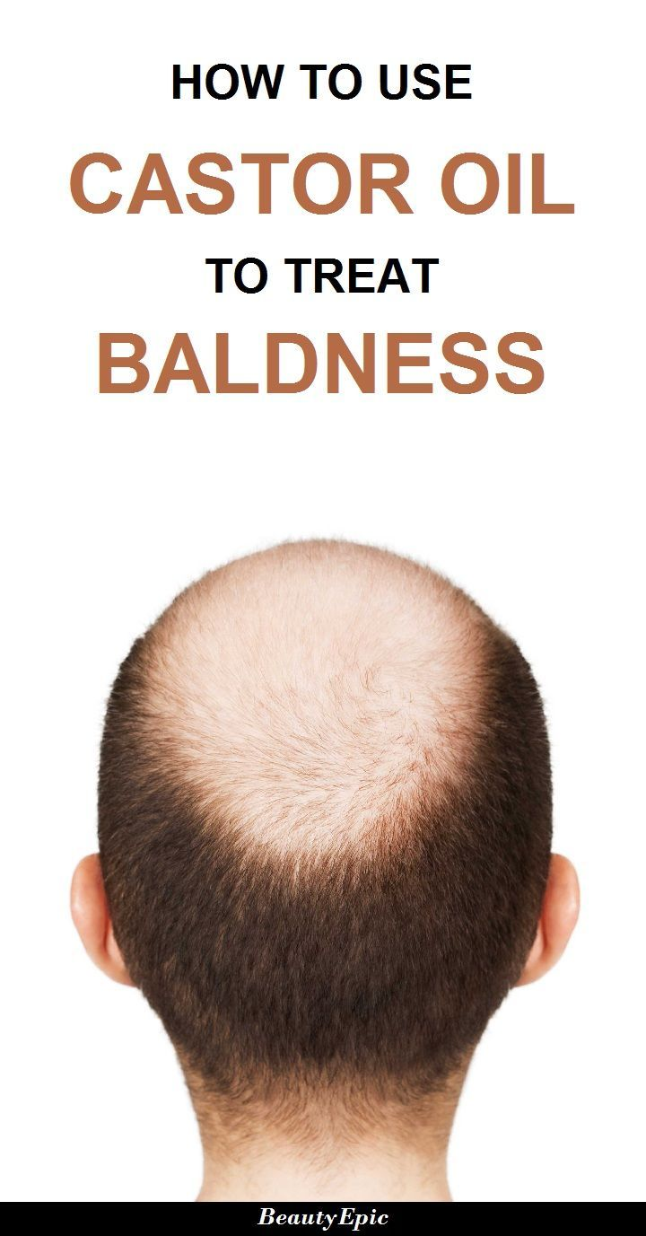 How to Treat Baldness with Castor Oil  Pinterest  Castor oil Oil