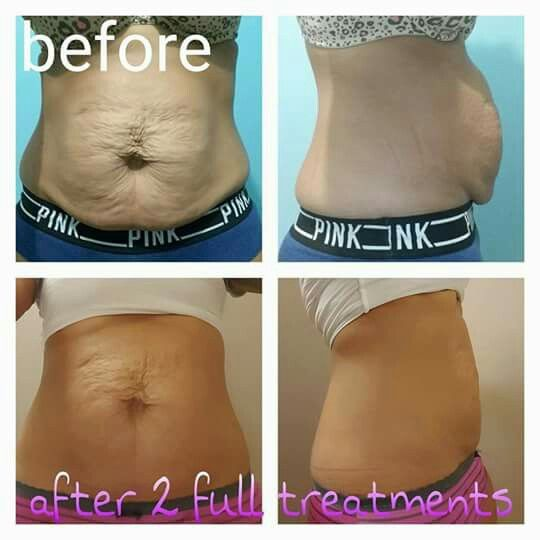 Check Out Our Friend Rosa After 2 C Sections And 8 Wraps I M So Happy For Her I Would Love To Help Anyone With Loose Skin Crazy Wrap Thing Tighten Loose Skin