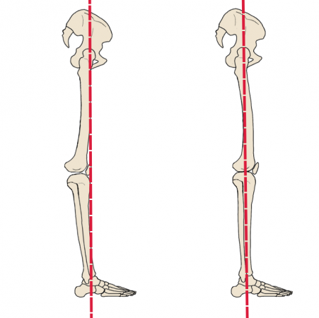 Genu recurvatum is a posture where the knees appear to bend backwards in standing due to the knees being placed in a hyperextended position.