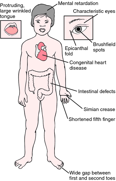 the clinical description of werner syndrome The classification and clinical features of drug allergy will be reviewed here, beginning with a categorization of the different types of adverse drug reactions a detailed discussion of the pathogenesis of drug allergy and an approach to the diagnosis and management of drug allergies are found elsewhere.