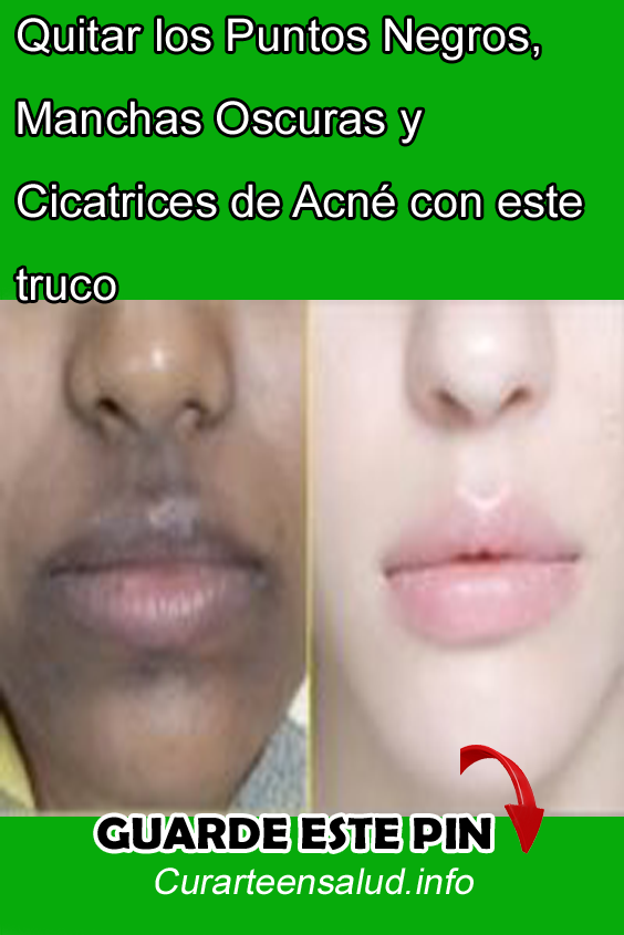 mascarillas para quitar cicatrices del acne