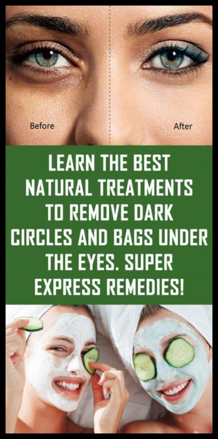 how to remove dark circles in eyes naturally