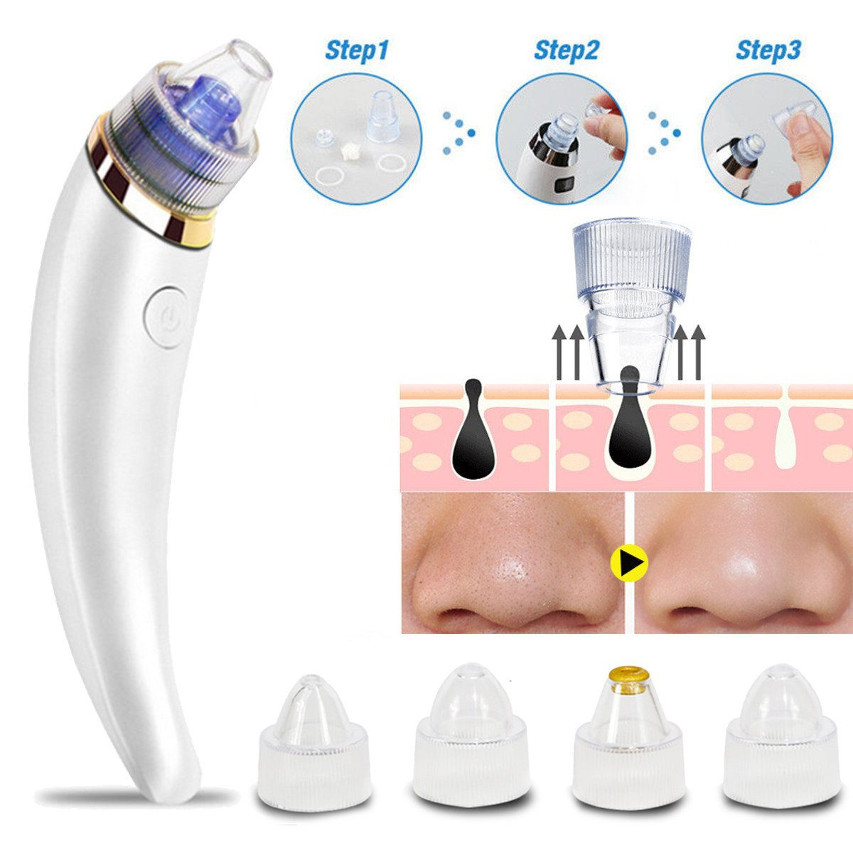 Electric Blackhead Removal Tool Microdermabrasion Vacuum Pore