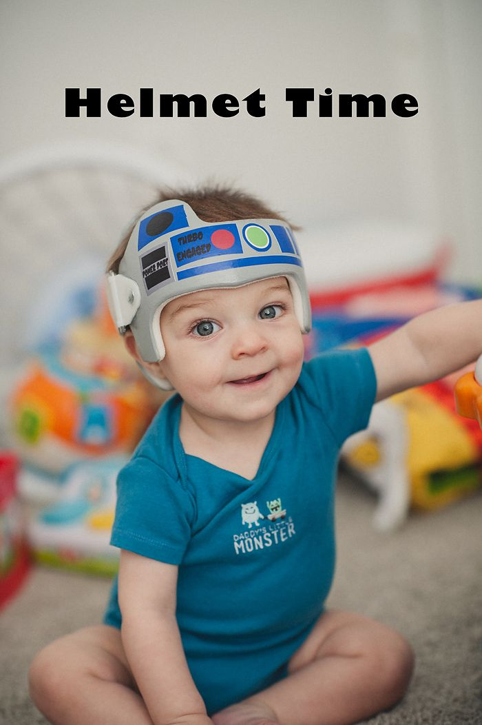 Plagiocephaly Measurements And A Cuter Helmet Plagiocephaly - Baby helmet decalsa family blog that takes you through the experience of a baby with