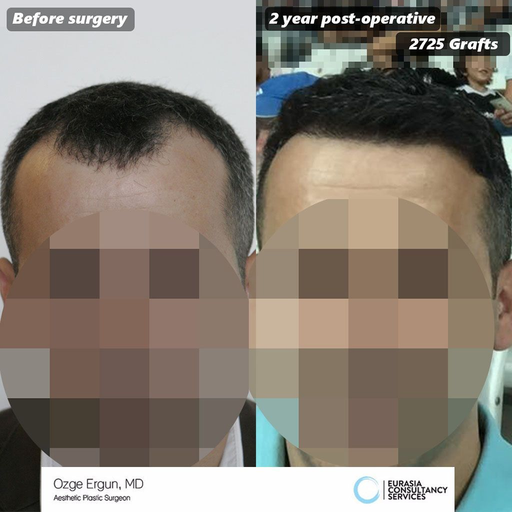 FUE Hair transplant surgery  Ozge ERGUN MD  ozgeergun