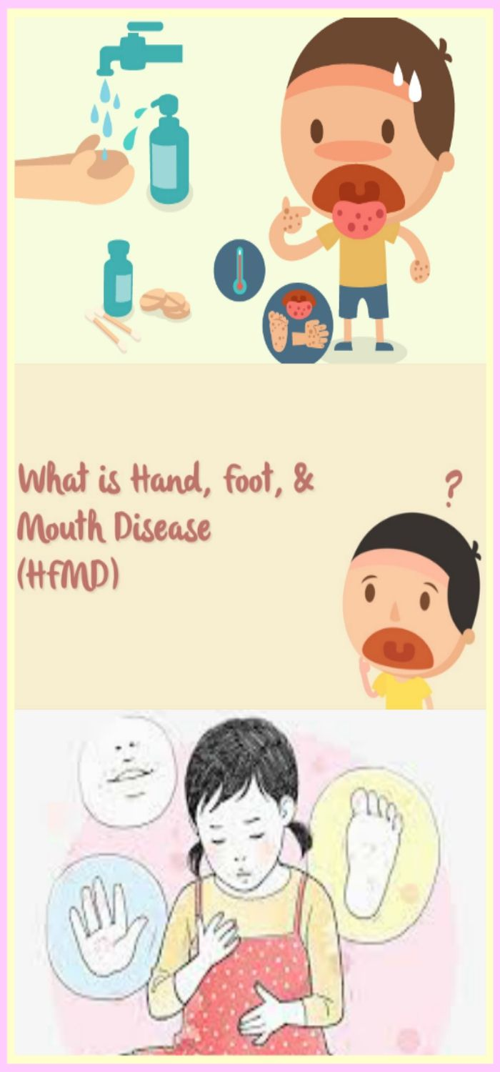 Hand Foot And Mouth Disease Or Hfmd Is Because Of A Virulent Disease Symptoms Encompass Ulcers Or Sores Interior Or Hand Foot And Mouth Kids Fever Disease