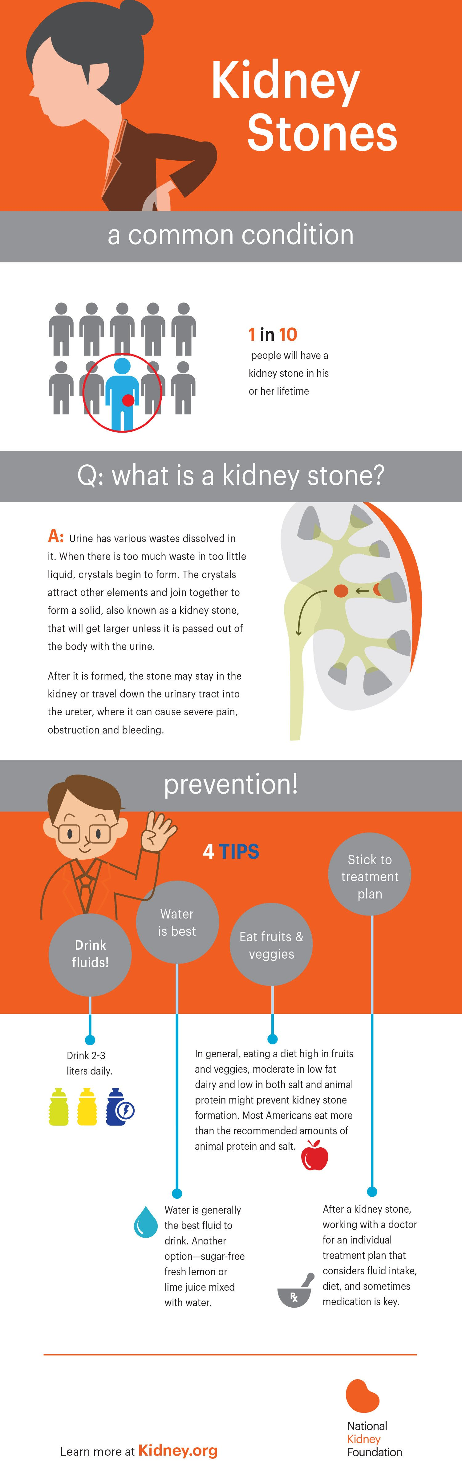 Kidney Stones Are Not Fun My Story And Infographic Robyns World Kidney Stones Kidney Stone Diet Kidney Health