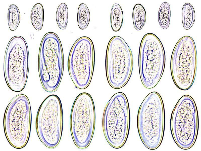 Enterobius vermicularis eier