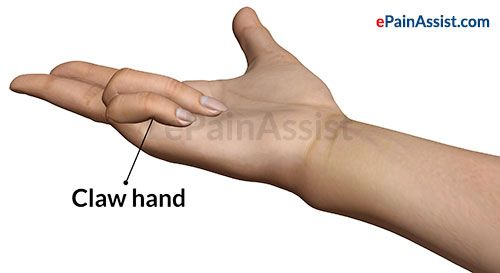 Ulnar Nerve Palsy/claw Hand For Boards! Pinterest