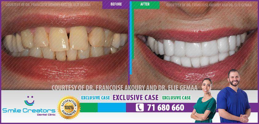 Congratulations Siham on your new Smile ! Thank You Dr Elie GEMAA ! Thank You Smile Creators TEAM ! 71-680660 #WeCreateYourHollywoodSmile http://youtube.com/smilecreatorslb http://smilecreators-lb.com/before-after https://www.facebook.com/SmileCreators/ http://www.cosmeticdentistrybeirut.com/ http://www.smilebeirut.com/ http://www.veneers-beirut.com/  #HollywoodSmile #EmaxVeneers #PreplessVeneers #Lebanon #DentalClinic
