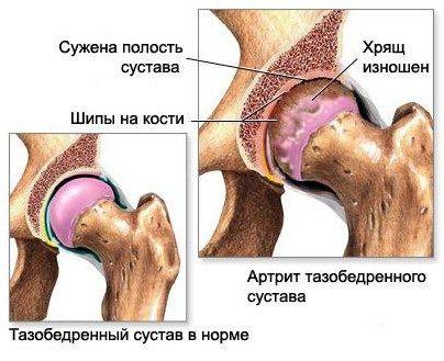 считаю, что ревматоидный артрит коксартроз считаю, что