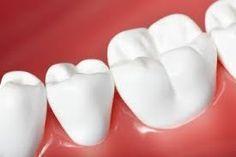 نزيف اللثة هو رسالة من لثتك لك تخبرك أنها بحاجة الى الرعاية والتنظيف قد يؤدي إهمالك لهذه الرسالة الى تفاقم مشكلة النزيف وحدوث أ Dental Wall Art Dental Novelty