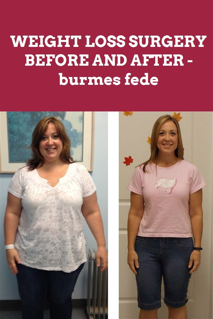 MAN WEIGHT LOSS BEFORE AND AFTER - burmes fede