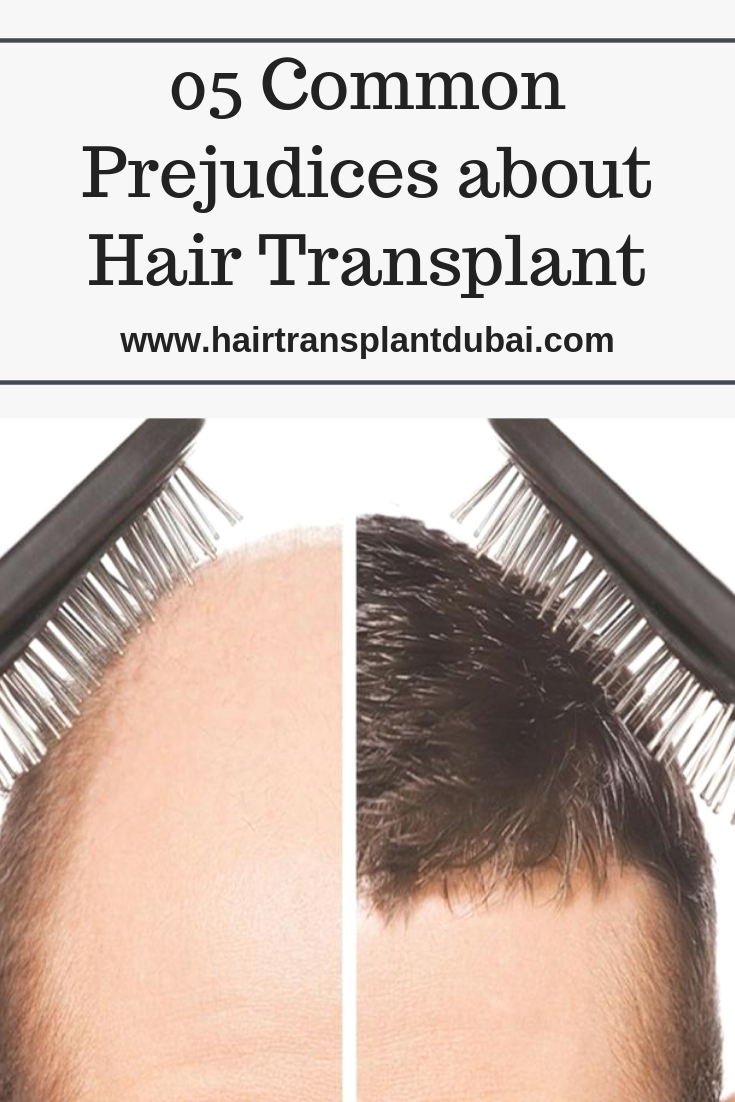 We Belittle The Soundness Of Our Hair The Vast Majority Of Us Expect That Our Full Head Of Hair Will Remain With Us Always Unt Hair Transplant Hair About Hair