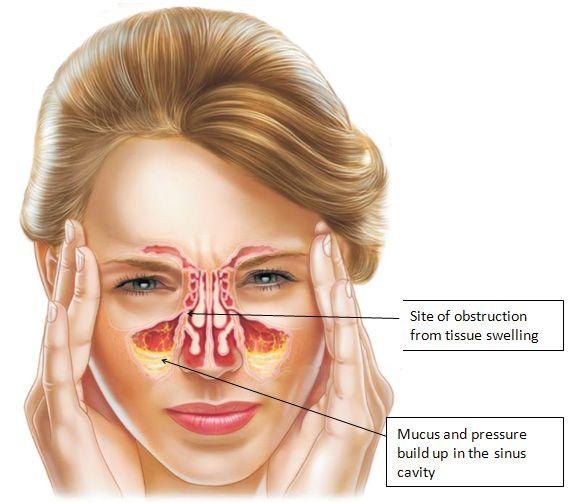Natural Remedies For Sinus Ear Blockage