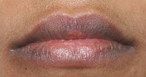 How to Lighten Dark Lips Naturally and Home Remedies for ...