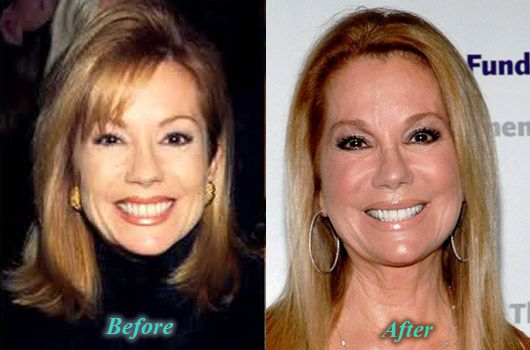 Kathie Lee Gifford Plastic Surgery Botox Before After Aesthetic Dermatology Botox Before And After Botox