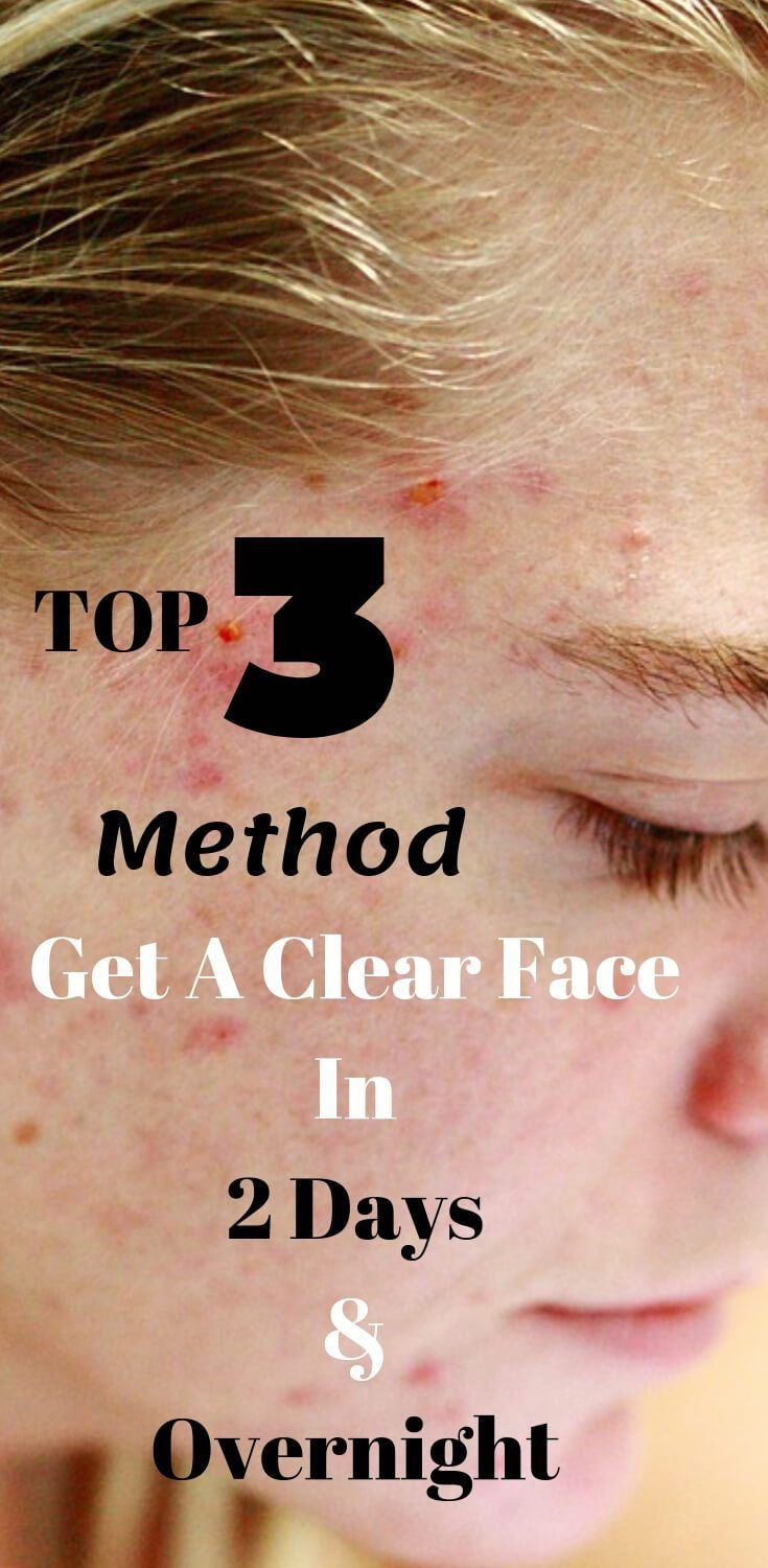 How To Get A Clear Face In 2 Days Clear Skin Face Clear Face Clear Skin Fast
