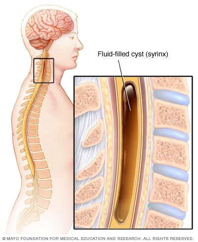 Pilonidal Cyst Treatment Self Care At Home