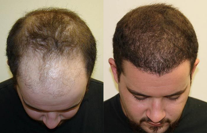 Best Price Best Results Hair Transplant Istanbul Turkey