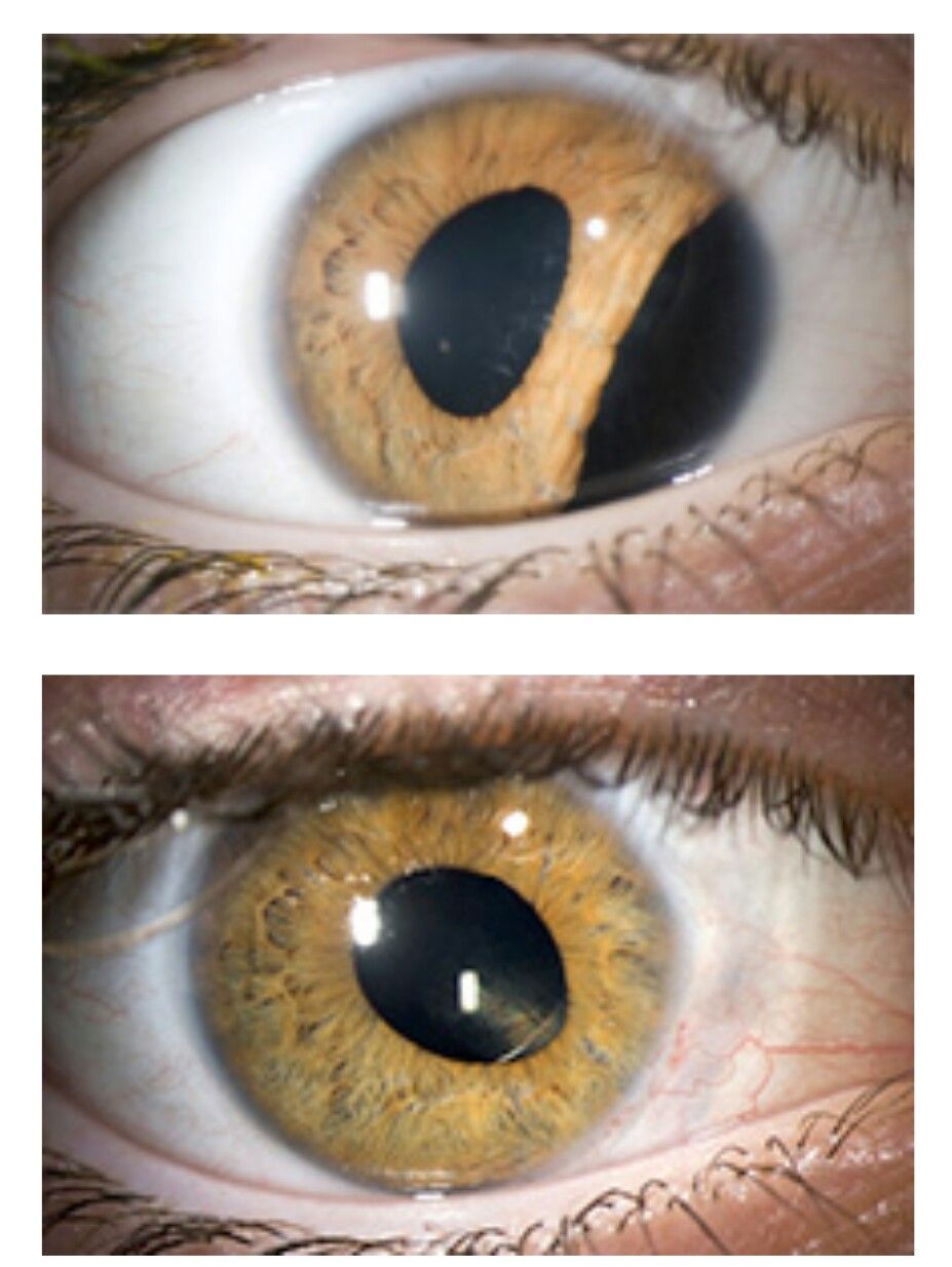 A Post Traumatic Iridodialysis Can Be Repaired With 10 0 Prolene Sutures After The Cataract Has Been Removed A Le Cataract Mattress Box Springs Bizarre Photos
