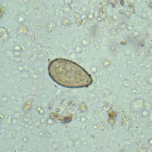 ouă fascioliasis