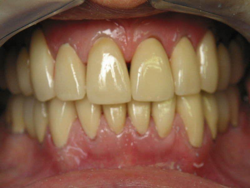 df2de6cfdc0706b3d896eb5249858fda - How To Get Rid Of Black Stains On Your Teeth