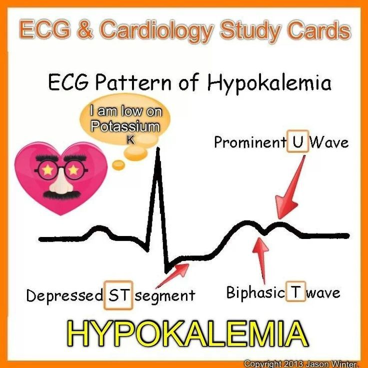 Late hyperkalemia ekg