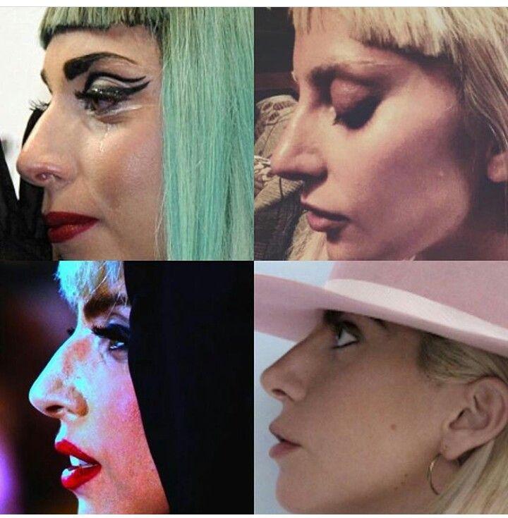 Before And After Surgery Lady Gaga Lady Gaga Nose Lady Gaga Plastic Surgery Lady Gaga