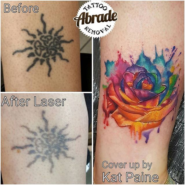 6dbcb54f0 Kerrie hated this old celtic/tribal sun but struggled to get a nice cover up  since it was so dark... a few laser treatments from us got her sorted and  we ...