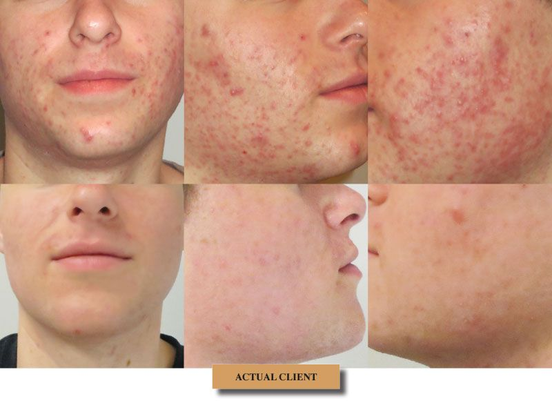 Acne Treated With Fraxel Dramatic Results Laser Resurfacing Renew Skin Before And After Acne