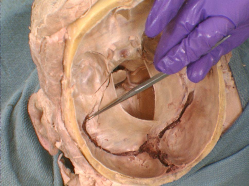 The Body Online - Stony Brook University Department of Anatomy Veins ...