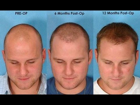 How To Reduce Hair Growth For Men