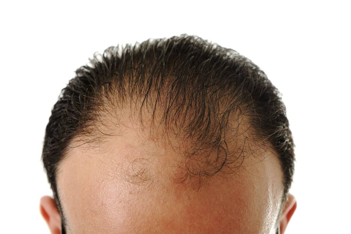 Hair Extensions for Balding Men  Foreskin May Help Cure Male