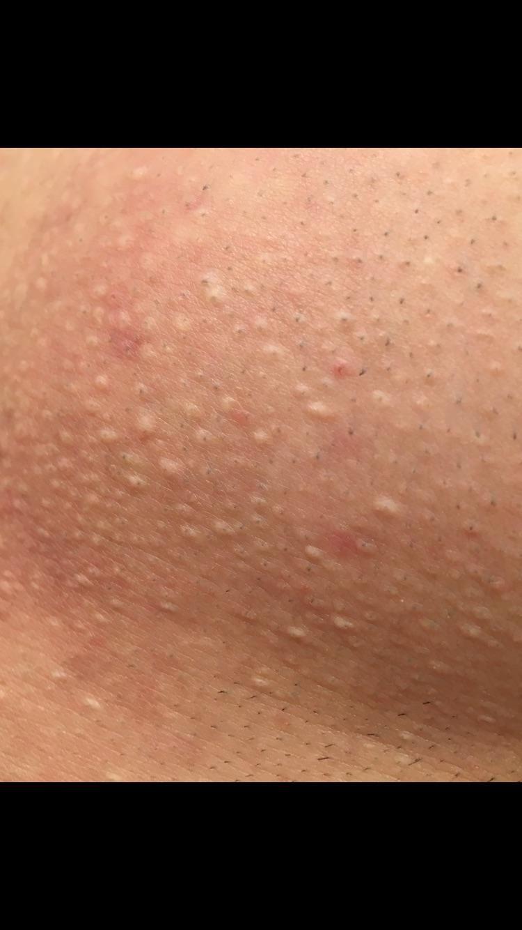 pores-videos-girl-thick-booty