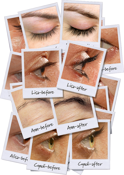 Check Out These Great Before Afters Have You Tried Rapidlash Yet