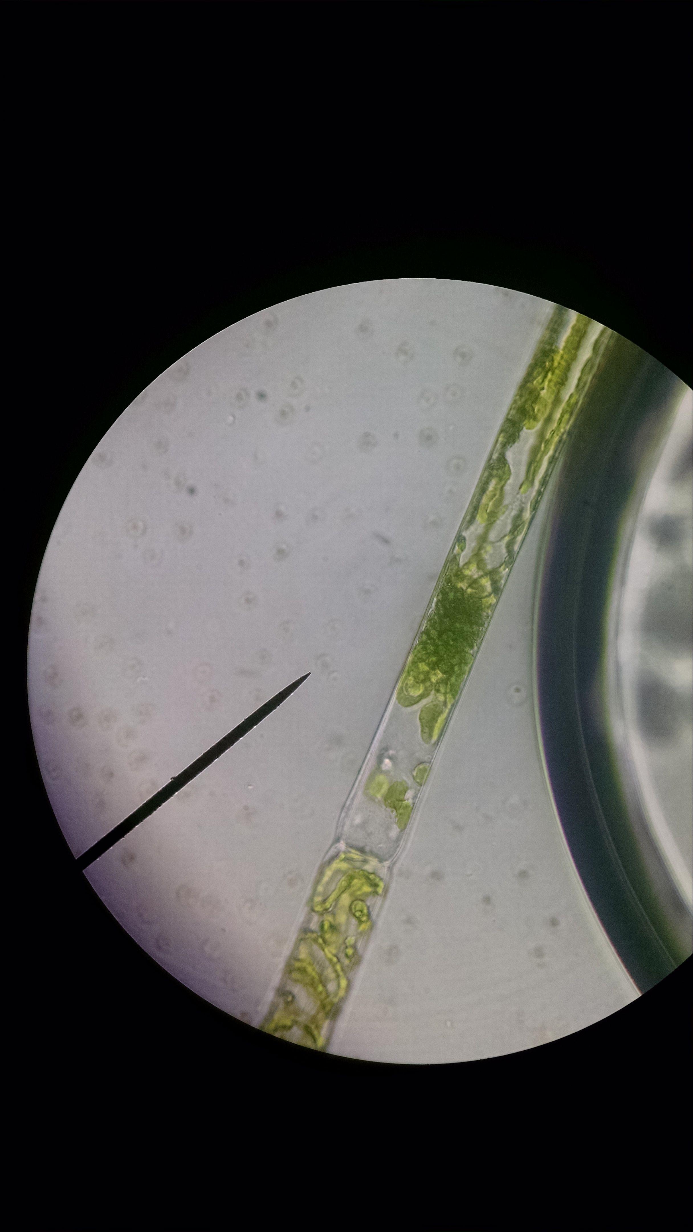 Spirogyra 1000x