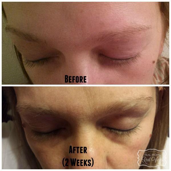 Rapidlash Eyelash And Eyebrow Enhancing Serum Helps Improve The