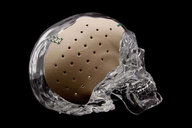 An Osteofab Patient Specific Cranial Device Opscd Photo Via